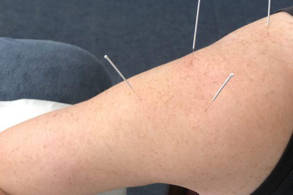 Acupuncture Esker Physio